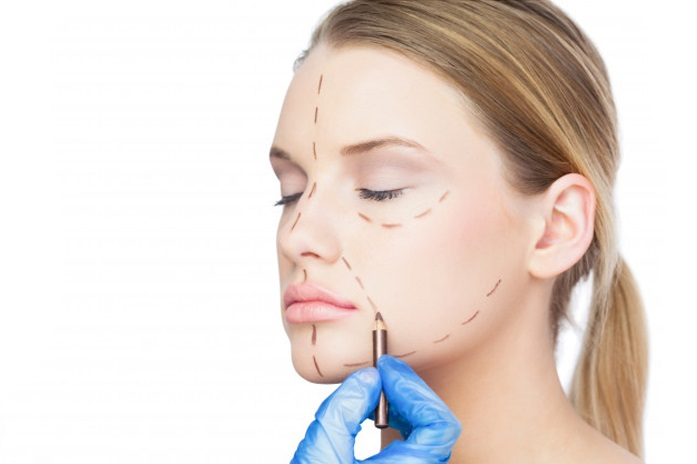 face-lift-surgery