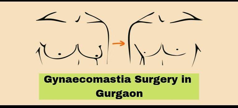 Gynaecomastia Surgery in Gurgaon